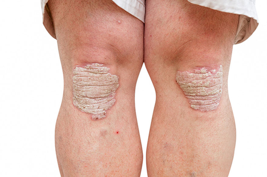 Psoriasis Treatment